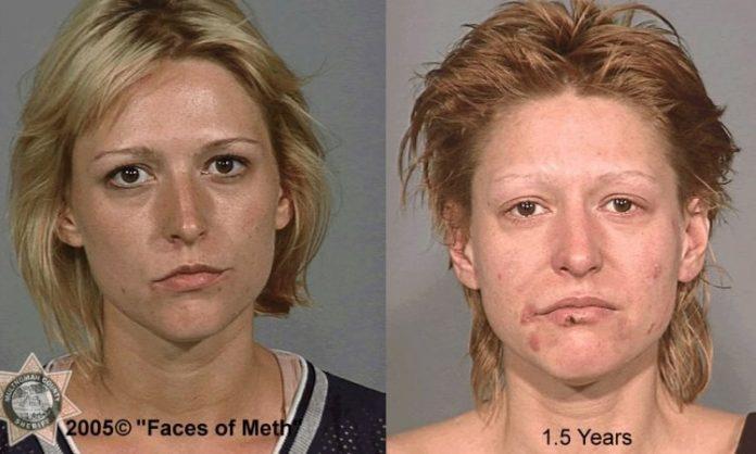 Eine junge Frau vor und nach dem Konsum von Meth
